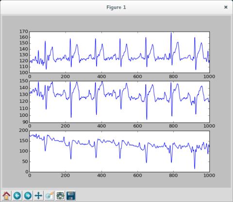 Drei EKG-Kanäle mit erkennbarem Puls